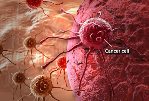 What is Cancer? How Cancer Starts?
