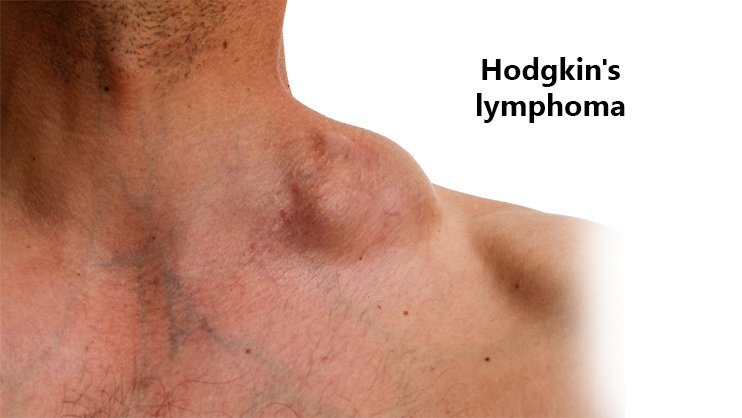 Must-Know Facts on Treating Hodgkin's Lymphoma