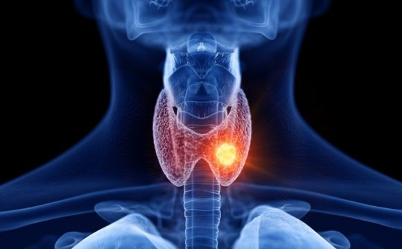 What Is Thyroid Cancer?