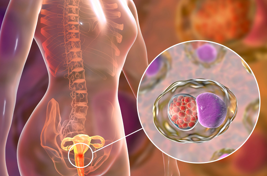All you need to know about cervical cancer.